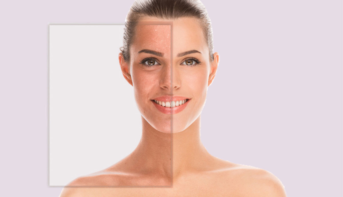 Anti-Pigment Peelings , Brightening, Miami-Peel